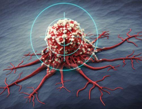 A SAFER SOLUTION-Israeli Startup CAPS Medical Develops Technology to Target Solid Internal Tumors
